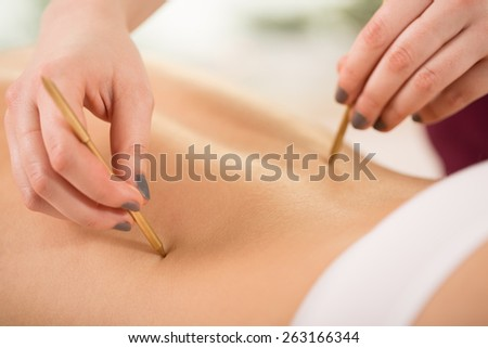 Close-up of woman relaxing during acupuncture session - stock photo