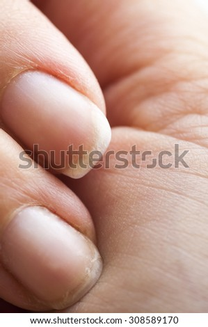 Close-up of woman's brittle damaged fingernails - stock photo