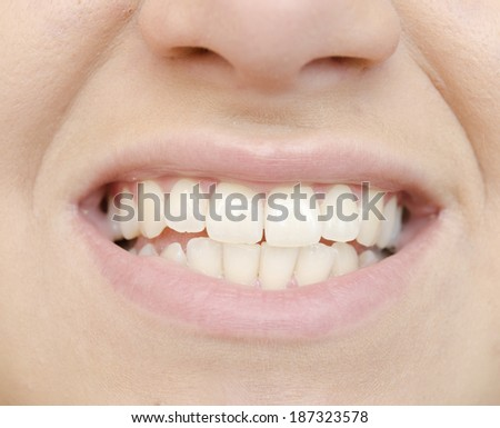 close up of woman teeth