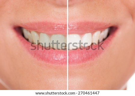 Close-up Of Woman Teeth Before And After Whitening