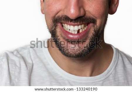 Close up on a man smiling while he is missing a tooth. - stock photo
