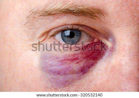 Close up on a shiner on a white man - stock photo