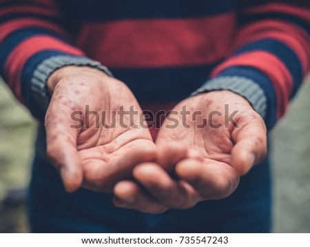 Close up on the hands of a young man with a rash on his hands begging outside