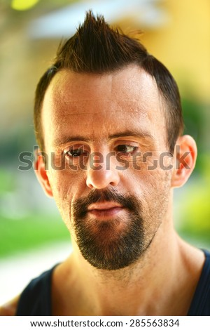 Close up portrait of cute handicapped boy - stock photo