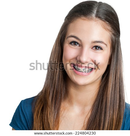 Close up portrait of Smiling Teen girl showing dental braces.Isolated on white background. - stock photo