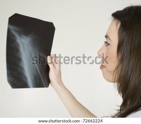 close up portrait of young doctor with x ray shot in hands