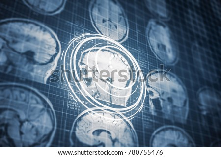 close series ct scan human head stock illustration 780755476