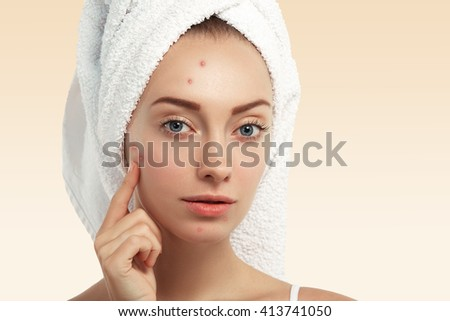 Close up shot of young Caucasian female with blue eyes and acne skin, pointing at pimple, looking at the camera while getting facial treatment in spa salon. Dermatology and problem skin concept   - stock photo