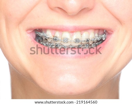 Close up smile of an young woman wearing orthodontic braces. - stock photo