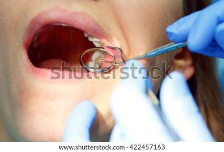Close up woman getting a dental treatment