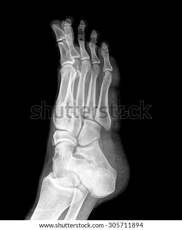 Close up x-ray of foot ankle - stock photo