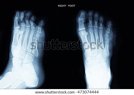 closed fracture at little toe right foot