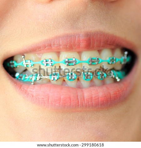 Closeup Asian women Ceramic and Metal Braces on Teeth.Smile with Sapphire braces. - stock photo