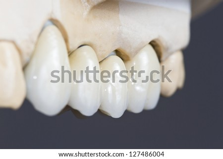 closeup for a dental ceramic bridge o na  cast model