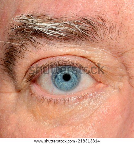 Closeup image of a gas permeable contact lens in a human right eye. - stock photo