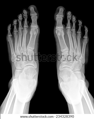 closeup image of classic xray image of feet - stock photo