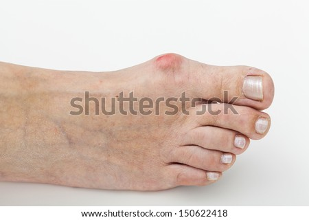 Closeup of a bunion - hallux valgus - stock photo