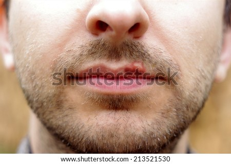 Closeup of a common cold sore virus herpes. Cold sores on the lips of a man with a beard. - stock photo