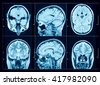 Closeup of a CT scan with brain - stock photo
