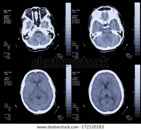 Closeup of a CT scan with brain