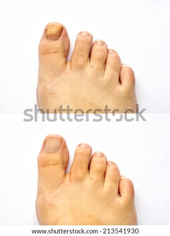 Closeup of a foot with arthritis healing before and after , damaged nails because of fungus and athlete's foot . - stock photo