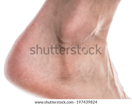 Closeup of a male ankle with dry skin on heal towards white - stock photo