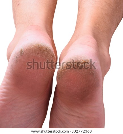 Closeup of a person with dry skin on heel . Isolated on white background. With clipping path inckuded. - stock photo