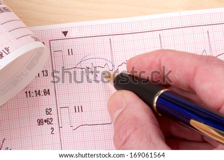 Closeup of an ECG diagram with pen pointing - stock photo