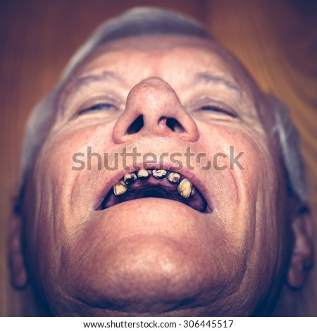 Closeup of an old man face with ugly teeth.