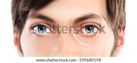 Closeup of blue eyes from a young man red and irritated eye with laser hologram on her eye - stock photo