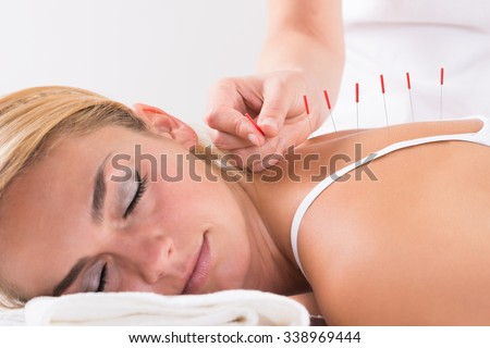 Closeup of hand performing acupuncture therapy on customer's back at salon - stock photo