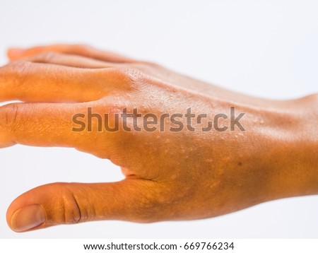 Closeup of Hand with Dyshidrotic Eczema. Isolated. White Background.
