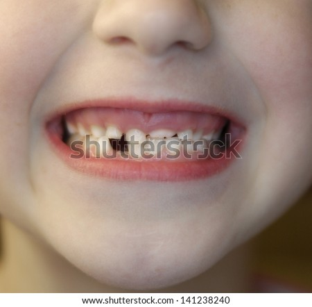Closeup of little girl with missing teeth - stock photo
