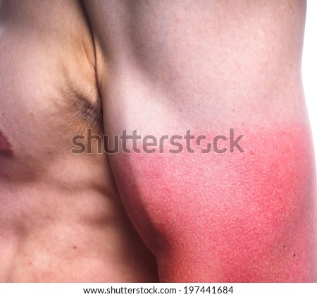 Closeup of male with heavy sunburn on biceps - stock photo