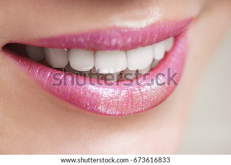 Closeup of smiling woman with prefect white teeth isolated on white background