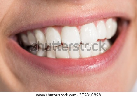 Closeup of smiling young woman showing healthy white teeth