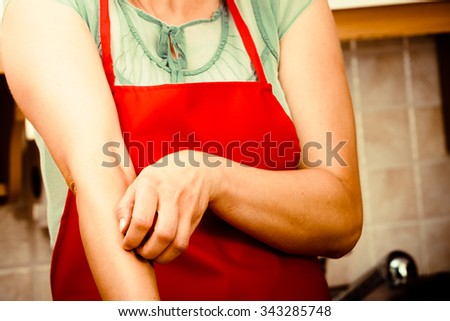 Closeup of woman scratching her itchy arm with allergy rash. Stressed female in kitchen. - stock photo