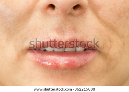 Closeup of woman swelling lips after treatment