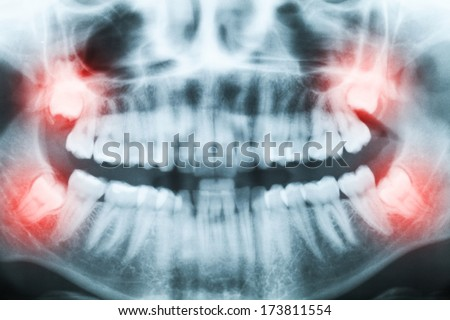 Closeup of x-ray image of teeth and mouth with all four molars vertically impacted. Filled cavities visible. Impacted wisdom teeth (number 8) on the right side of the face (image left) shown red. - stock photo
