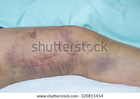 Closeup on a Bruise on wounded woman leg skin - stock photo