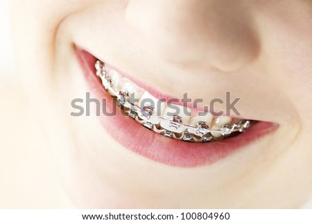 Closeup on braces and white teeth of smiling girl - stock photo