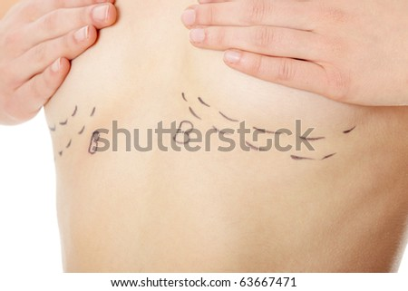 Closeup photo of a caucasian woman's abdomen marked with lines for abdominal cosmetic surgery - stock photo