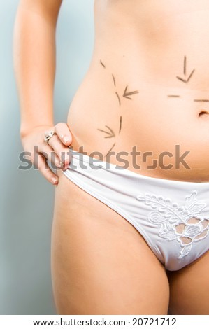 Closeup photo of a Caucasian woman's abdomen  marked with lines for cellulite correction cosmetic surgery - stock photo