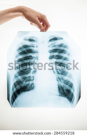 Closeup shot of man holding lungs x-ray film over white background - stock photo