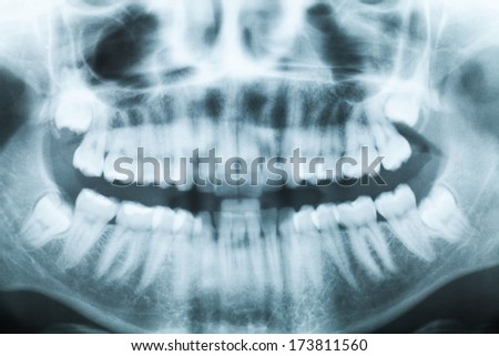 Closeup x-ray image of teeth and mouth with all four molars vertically impacted and still not grown and visible in the jaw bone. Filled cavities visible. - stock photo