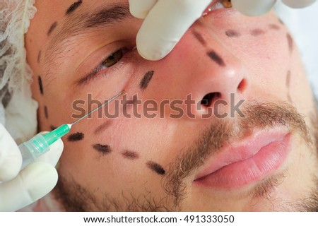 Closeup young mans face, black lines drawn around it, receiving facial cosmetic treatment injections, doctors hand with glove holding syringe