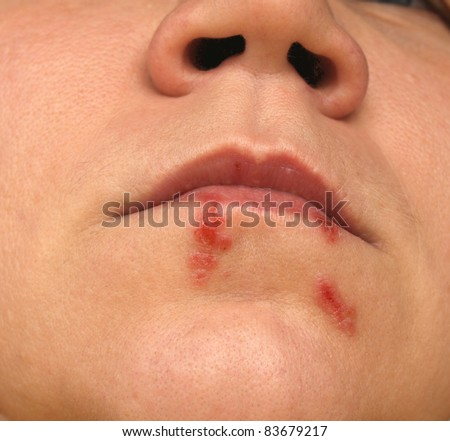 Cold sores. Herpes labialis. Close-up photo - stock photo
