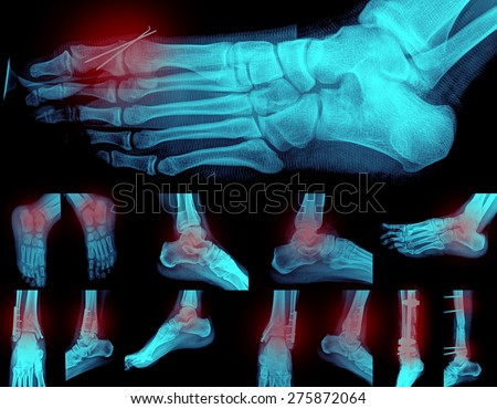 Collage of many foots painful X-rays. Very good quality - stock photo