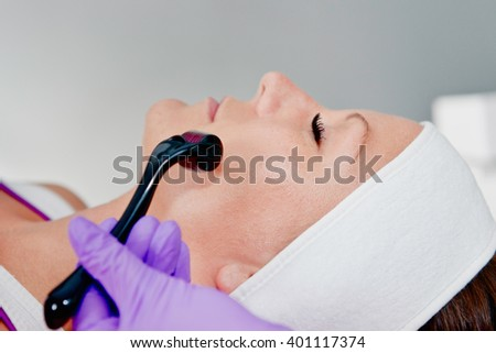 Collagen induction - Treating face with dermaroller - stock photo