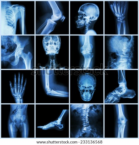 Collection human joint ( skull head neck shoulder chest thorax shoulder arm elbow forearm wrist hand finger palm spine back pelvis thigh knee leg foot ankle toe) - stock photo